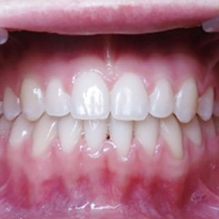 patient after invisalign
