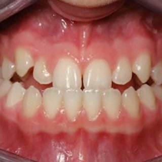 patient before invisalign